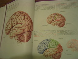 Brain1_1