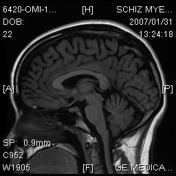 Brain_side_2